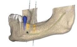 ノーベルクリニシャン・ソフトウェア 3Dデータ