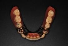 テレスコープ義歯