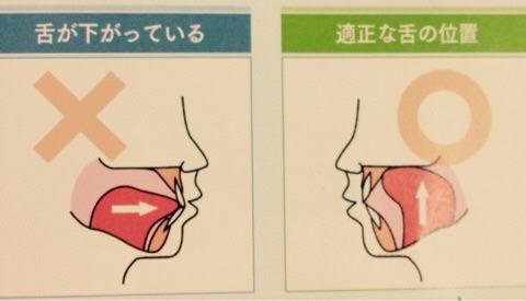 ストップ!口呼吸②口呼吸を簡単に治す3つの方法 | 大崎の歯科・歯医者 ...