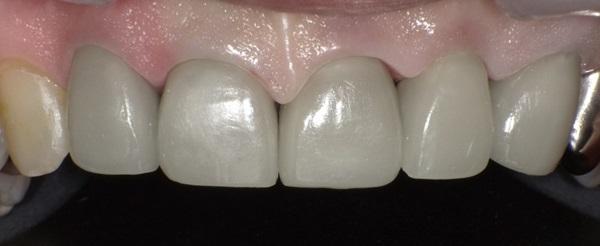 前歯部修復