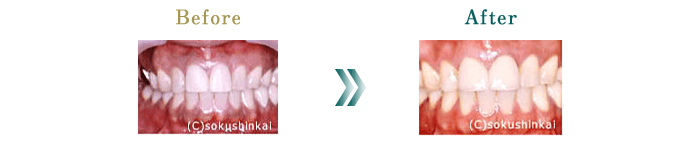 メラニン除去+メタルボンド 治療