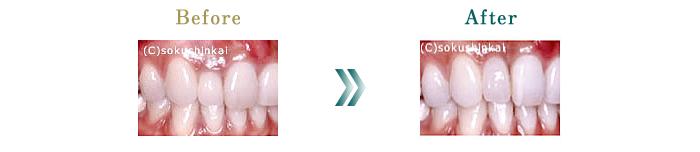 オールセラミックス+歯冠長延長術 治療