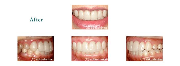 オールセラミックスクラウン+歯冠長延長術 治療後