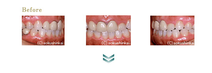 オールセラミックスクラウン+歯冠長延長術 治療前