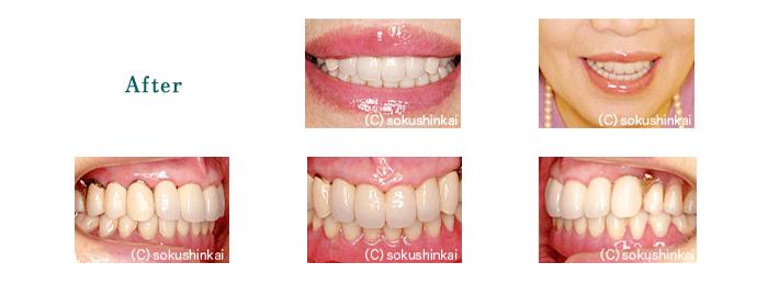 メタルボンドクラウン+部分義歯 治療後
