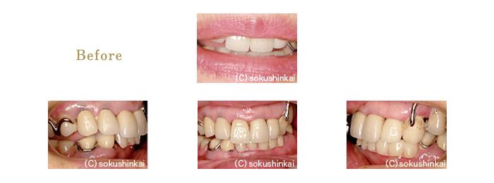 メタルボンドクラウン+部分義歯 治療前