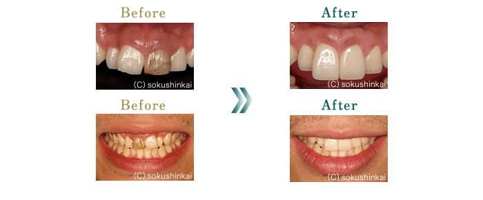 ホワイトニング+歯周外科処置+セラミック修復 治療