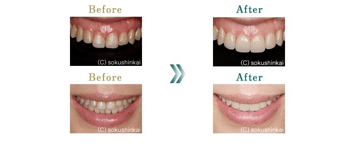 前歯の審美的改善 治療