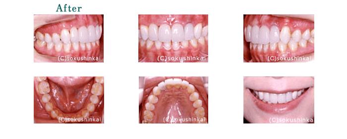 ホワイトニング+全顎補綴 治療後