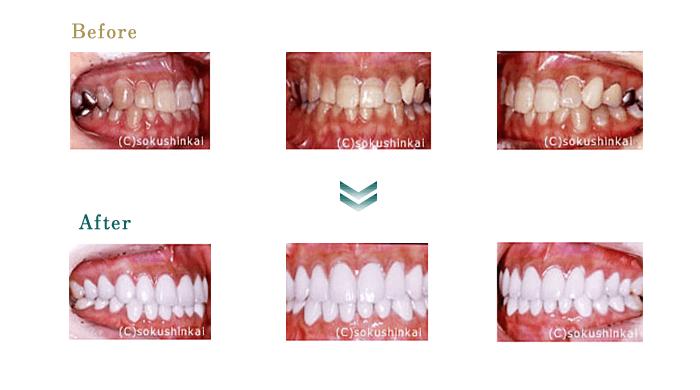 全顎補綴 治療
