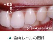 歯肉レベル