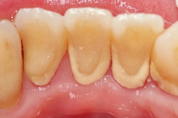 大崎シティデンタルクリニック 歯石